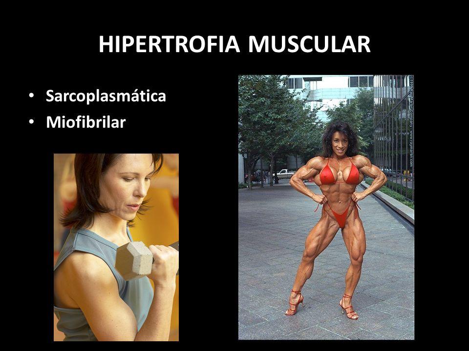 HIPERTROFIA MUSCULAR Sarcoplasmática Miofibrilar