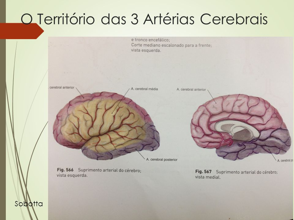 O Território das 3 Artérias Cerebrais Sobotta