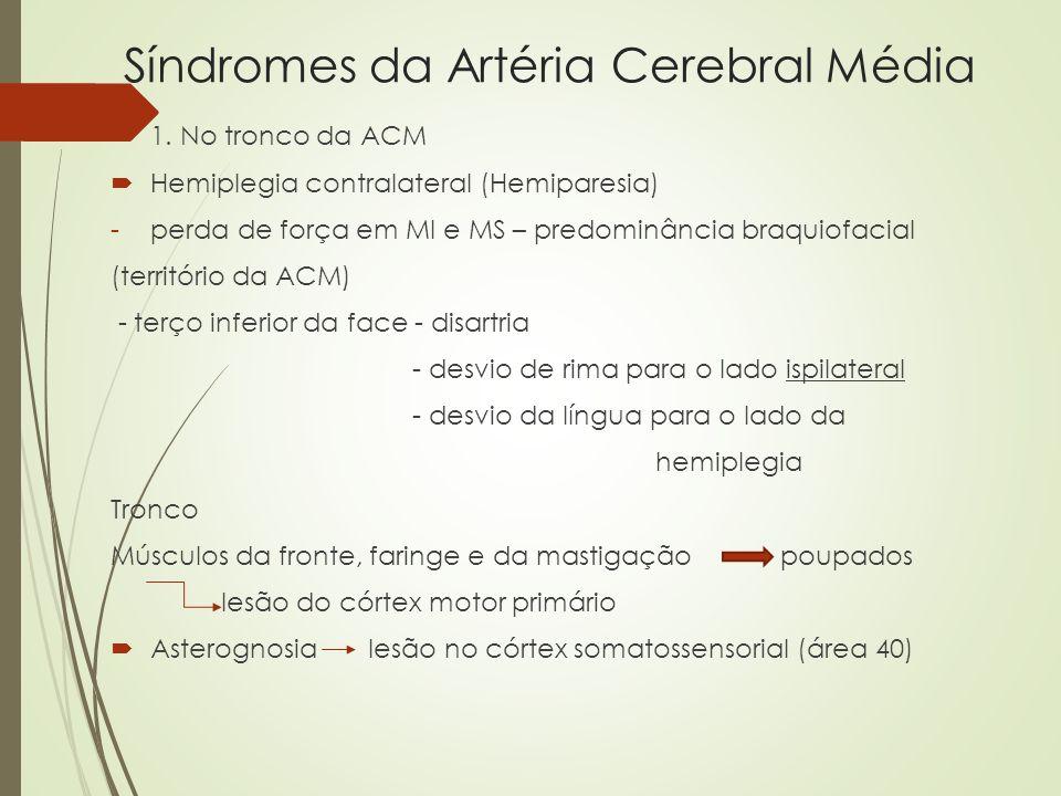 Síndromes da Artéria Cerebral Média 1. No tronco da ACM Hemiplegia contralateral (Hemiparesia) -perda de força em MI e MS – predominância braquiofacia