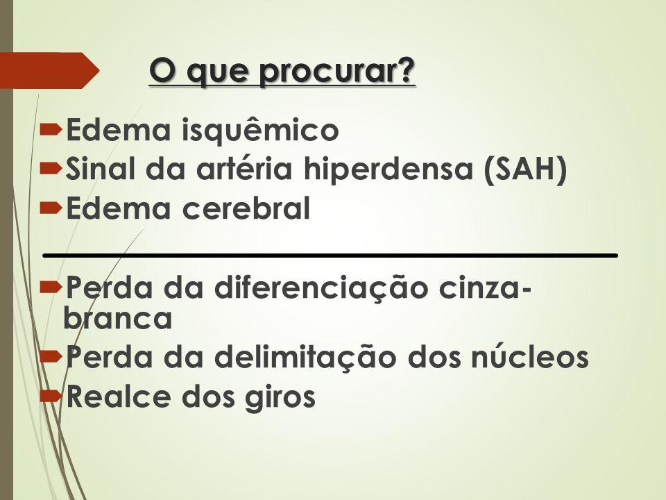 O que procurar? Edema isquêmico Sinal da artéria hiperdensa (SAH) Edema cerebral Perda da diferenciação cinza- branca Perda da delimitação dos núcleos