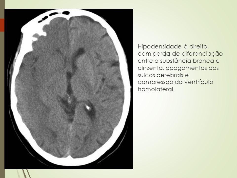 Hipodensidade à direita, com perda de diferenciação entre a substância branca e cinzenta, apagamentos dos sulcos cerebrais e compressão do ventrículo