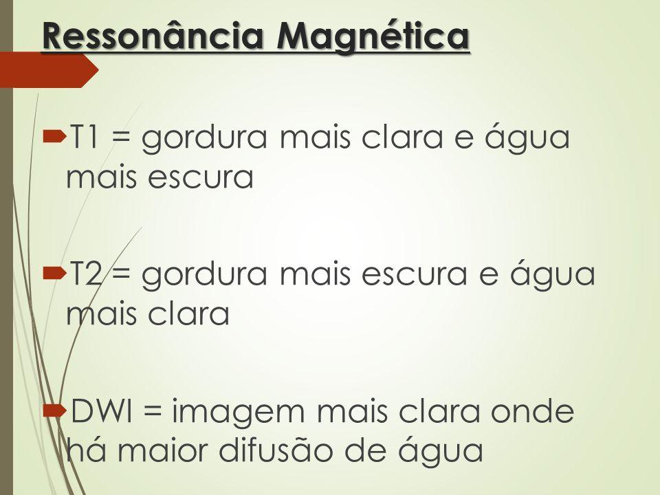 Ressonância Magnética T1 = gordura mais clara e água mais escura T2 = gordura mais escura e água mais clara DWI = imagem mais clara onde há maior difu