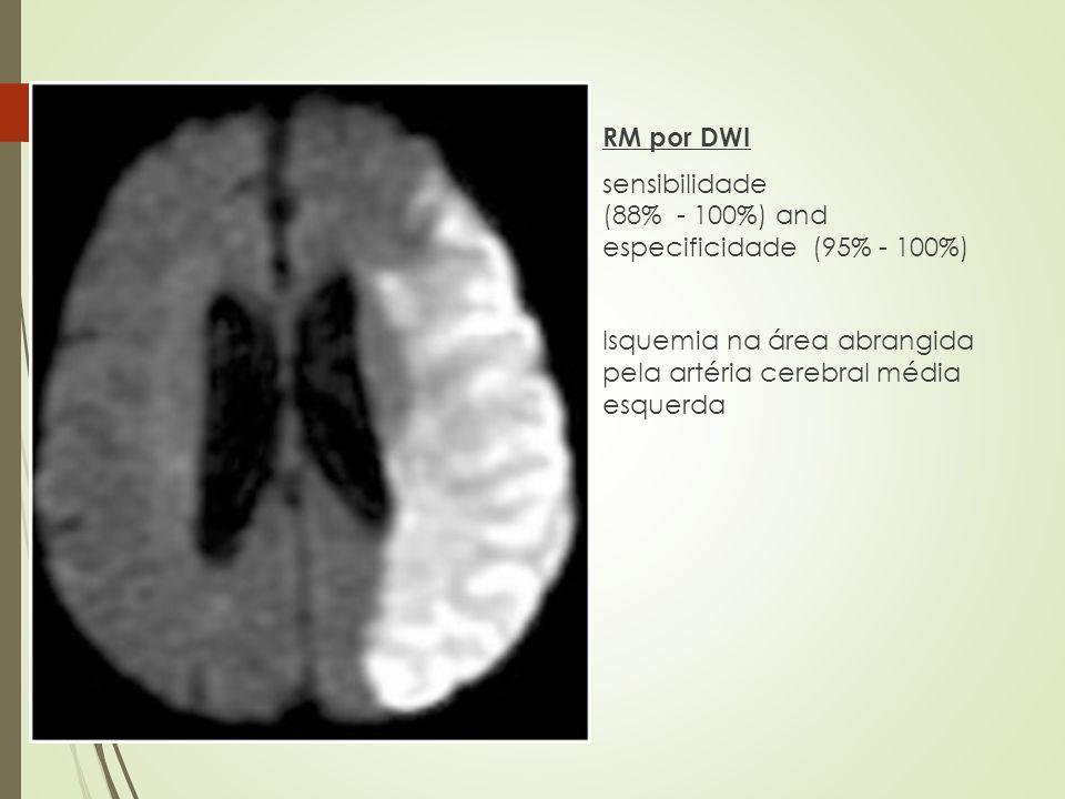 RM por DWI sensibilidade (88% - 100%) and especificidade (95% - 100%) Isquemia na área abrangida pela artéria cerebral média esquerda