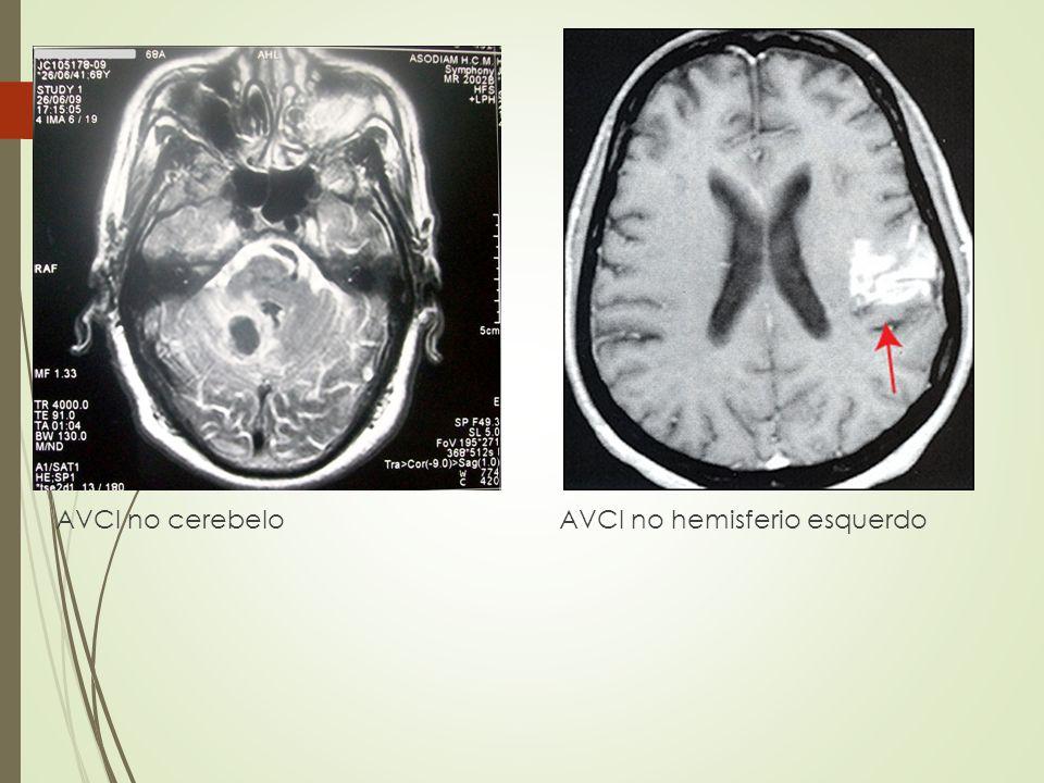 AVCI no cerebelo AVCI no hemisferio esquerdo