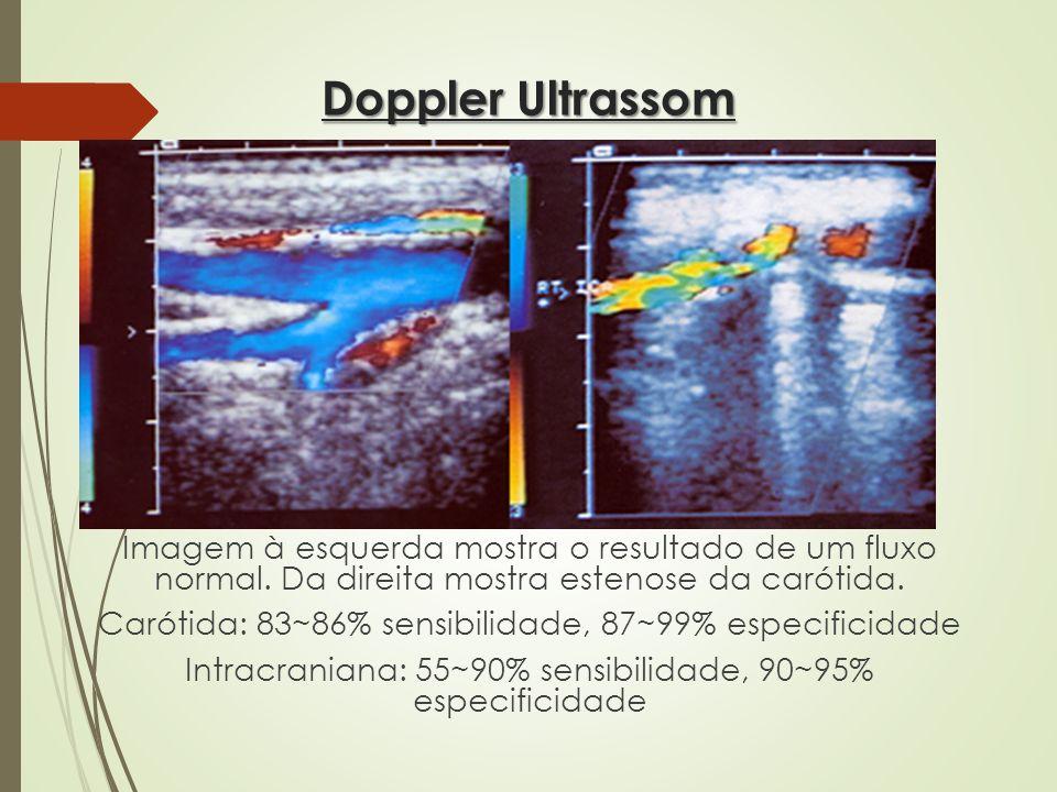 Doppler Ultrassom Imagem à esquerda mostra o resultado de um fluxo normal. Da direita mostra estenose da carótida. Carótida: 83~86% sensibilidade, 87~