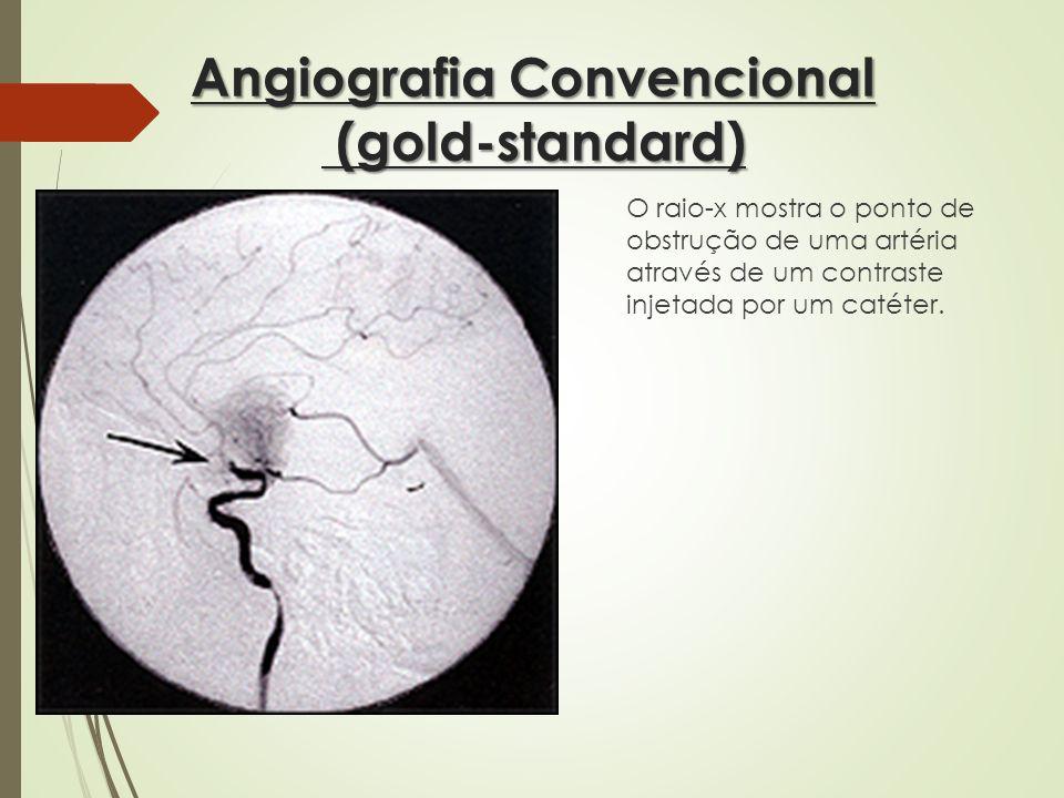 Angiografia Convencional (gold-standard) O raio-x mostra o ponto de obstrução de uma artéria através de um contraste injetada por um catéter.