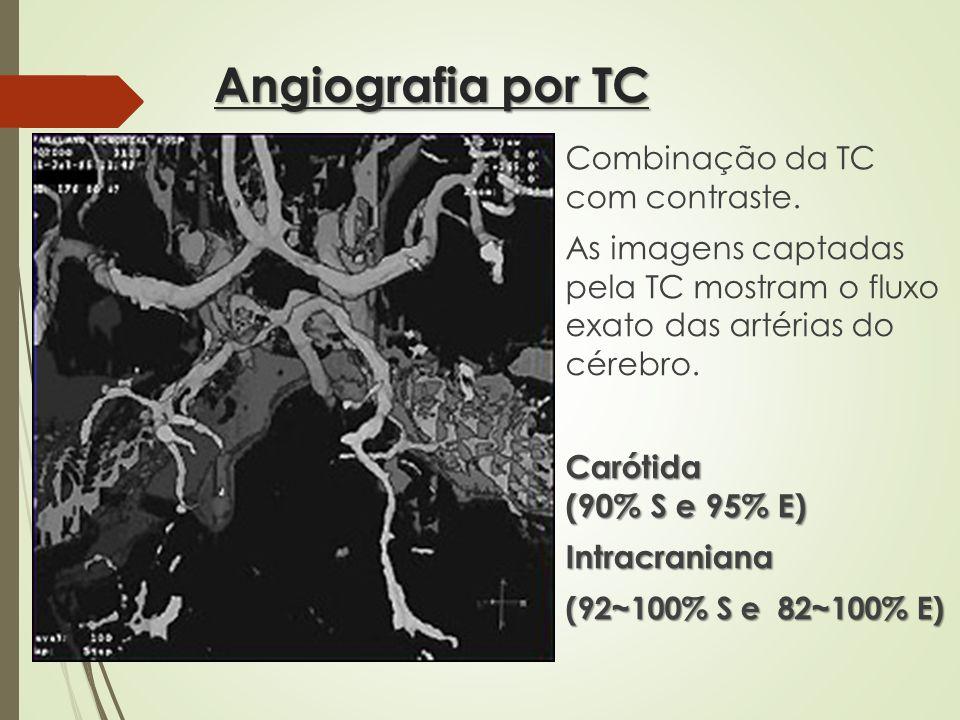Angiografia por TC Combinação da TC com contraste. As imagens captadas pela TC mostram o fluxo exato das artérias do cérebro. Carótida (90% S e 95% E)