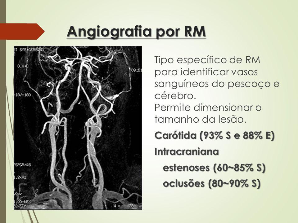 Angiografia por RM Tipo específico de RM para identificar vasos sanguíneos do pescoço e cérebro. Permite dimensionar o tamanho da lesão. Carótida (93%