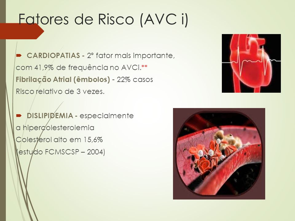 Fatores de Risco (AVC i) CARDIOPATIAS - 2º fator mais importante, com 41,9% de frequência no AVCi.** Fibrilação Atrial (êmbolos) - 22% casos Risco rel
