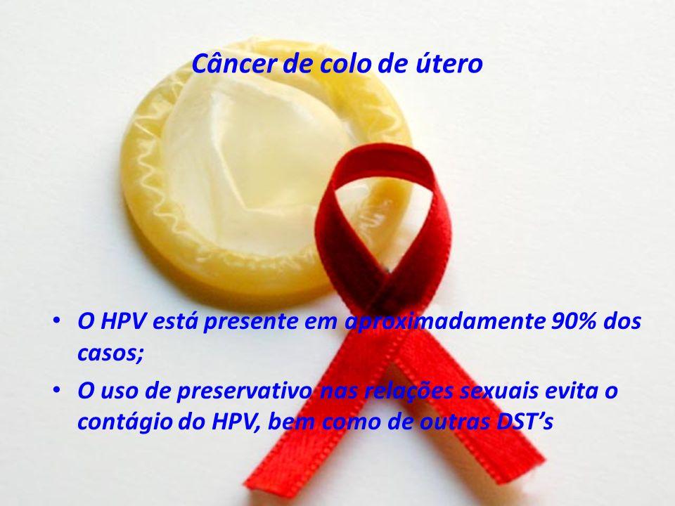 Câncer de colo de útero O HPV está presente em aproximadamente 90% dos casos; O uso de preservativo nas relações sexuais evita o contágio do HPV, bem como de outras DSTs