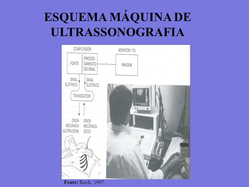 ESQUEMA MÁQUINA DE ULTRASSONOGRAFIA Fonte: Koch, 1997.