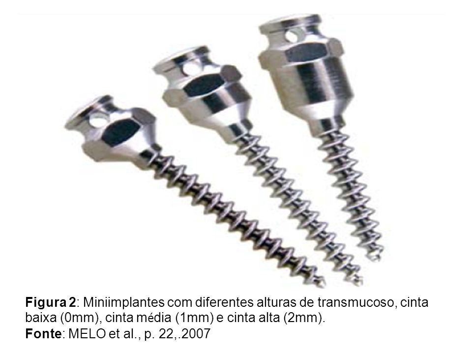 Figura 2: Miniimplantes com diferentes alturas de transmucoso, cinta baixa (0mm), cinta m é dia (1mm) e cinta alta (2mm). Fonte: MELO et al., p. 22,.2