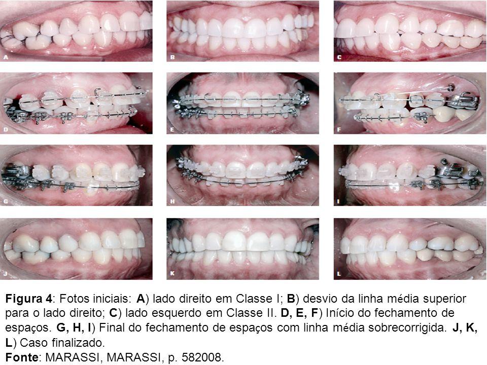 Figura 4: Fotos iniciais: A) lado direito em Classe I; B) desvio da linha m é dia superior para o lado direito; C) lado esquerdo em Classe II. D, E, F