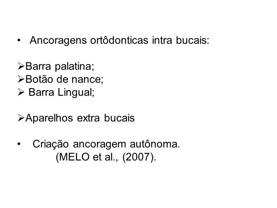 Ancoragens ortôdonticas intra bucais: Barra palatina; Botão de nance; Barra Lingual; Aparelhos extra bucais Criação ancoragem autônoma. (MELO et al.,