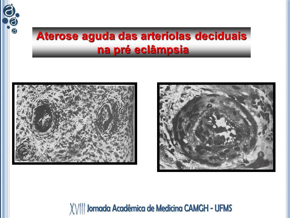 Aterose aguda das arteríolas deciduais na pré eclâmpsia na pré eclâmpsia