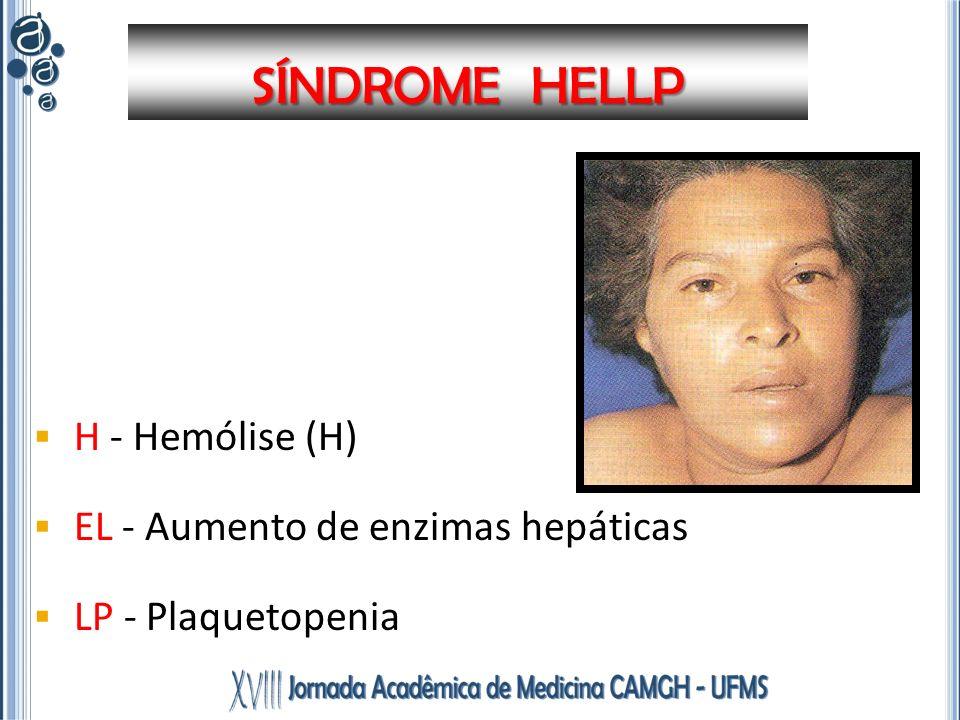H - Hemólise (H) EL - Aumento de enzimas hepáticas LP - Plaquetopenia SÍNDROME HELLP