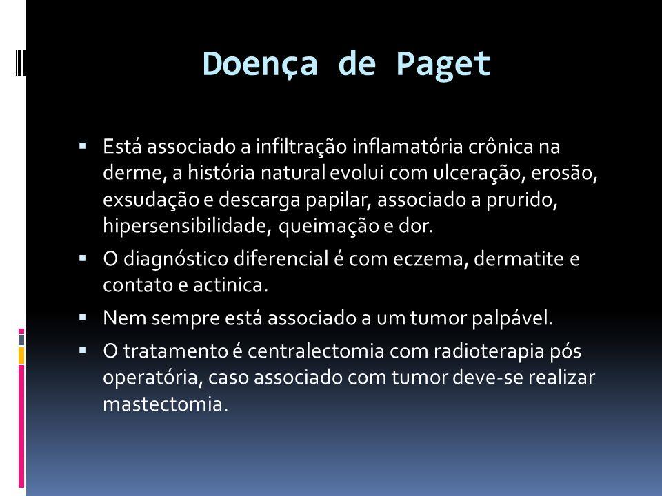 Doença de Paget Está associado a infiltração inflamatória crônica na derme, a história natural evolui com ulceração, erosão, exsudação e descarga papi