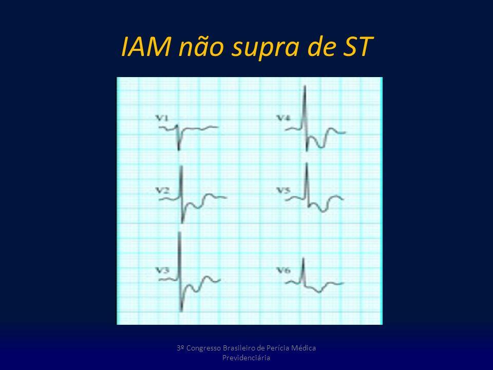 IAM não supra de ST 3º Congresso Brasileiro de Perícia Médica Previdenciária