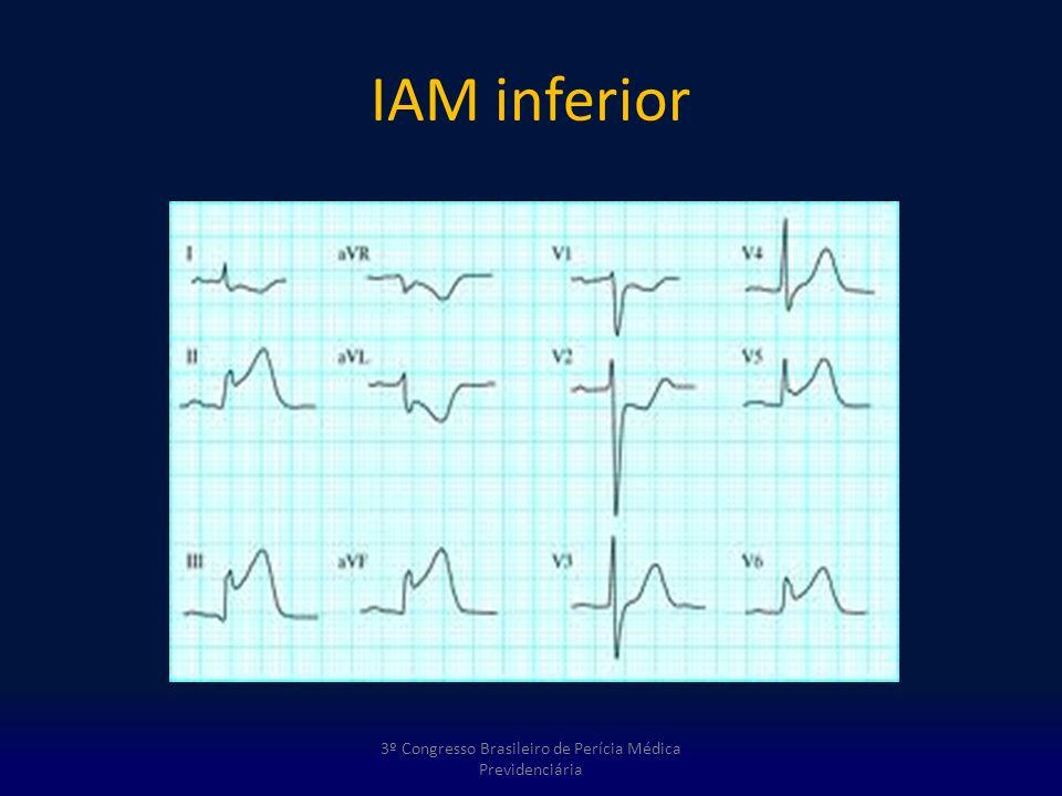 IAM inferior 3º Congresso Brasileiro de Perícia Médica Previdenciária