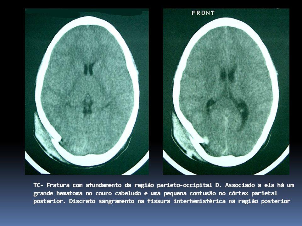 TC- Fratura com afundamento da região parieto-occipital D.