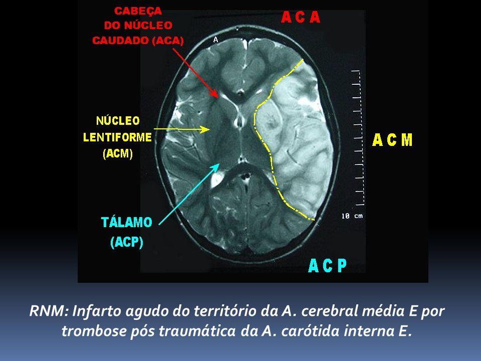 RNM: Infarto agudo do território da A.cerebral média E por trombose pós traumática da A.