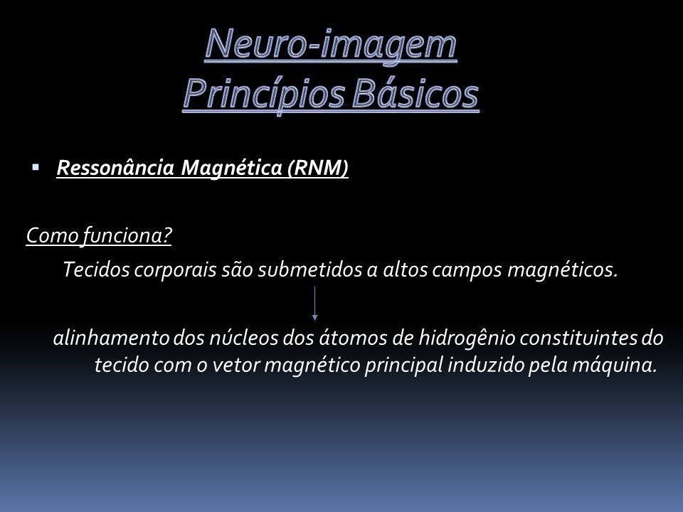 Ressonância Magnética (RNM) Como funciona.