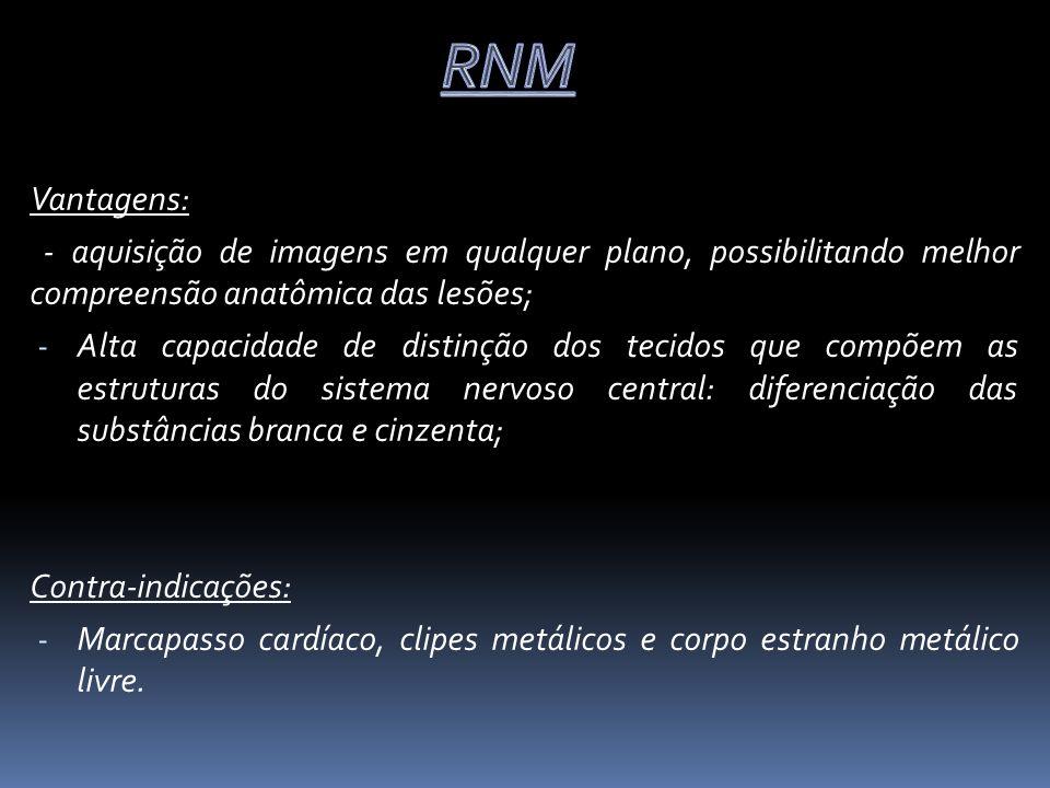 Atribuída a lesão: Moderada ou grave: Trauma cefálico com pelo menos uma das seguintes características: 1.