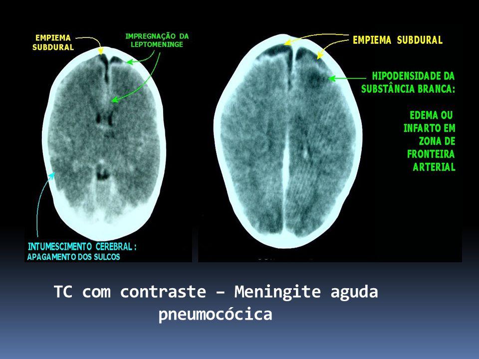 TC com contraste – Meningite aguda pneumocócica