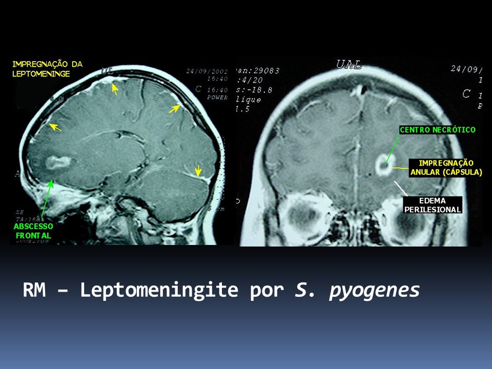 RM – Leptomeningite por S. pyogenes