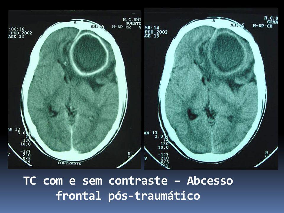 TC com e sem contraste – Abcesso frontal pós-traumático