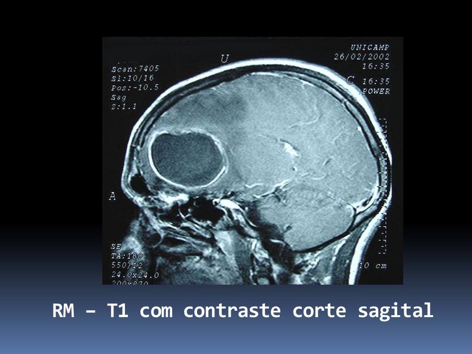 RM – T1 com contraste corte sagital