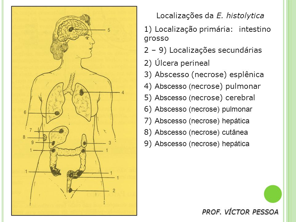 PROF.VÍCTOR PESSOA Localizações da E.