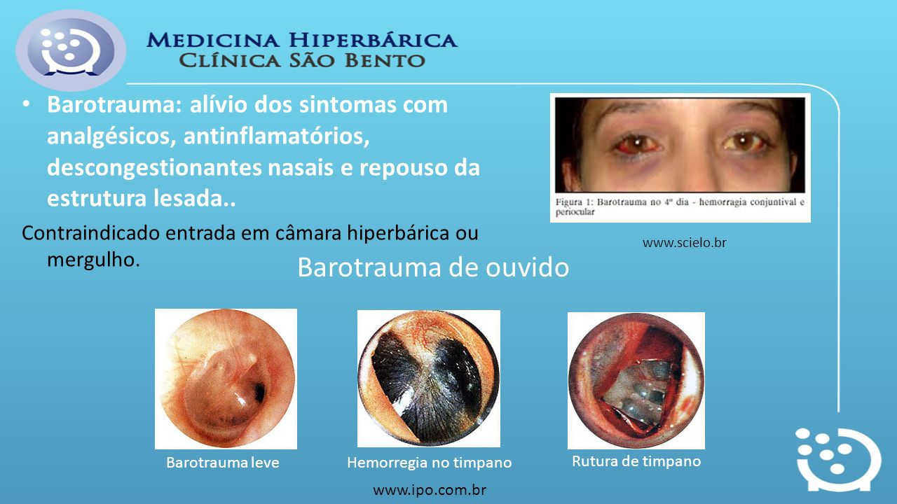 Barotrauma: alívio dos sintomas com analgésicos, antinflamatórios, descongestionantes nasais e repouso da estrutura lesada.. Contraindicado entrada em