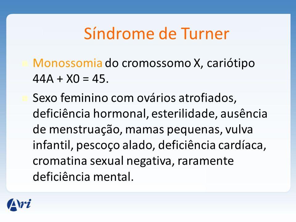 Síndrome de Turner Monossomia do cromossomo X, cariótipo 44A + X0 = 45. Sexo feminino com ovários atrofiados, deficiência hormonal, esterilidade, ausê