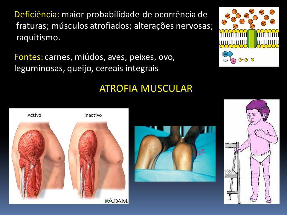 Deficiência: maior probabilidade de ocorrência de fraturas; músculos atrofiados; alterações nervosas; raquitismo. Fontes: carnes, miúdos, aves, peixes