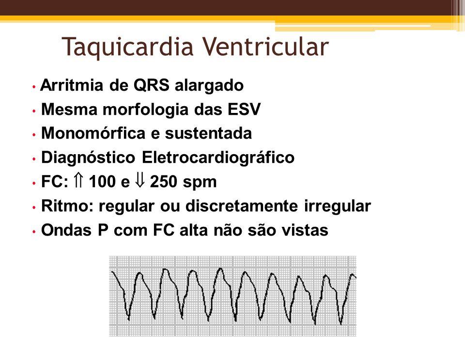 Taquicardia Ventricular Arritmia de QRS alargado Mesma morfologia das ESV Monomórfica e sustentada Diagnóstico Eletrocardiográfico FC: 100 e 250 spm R