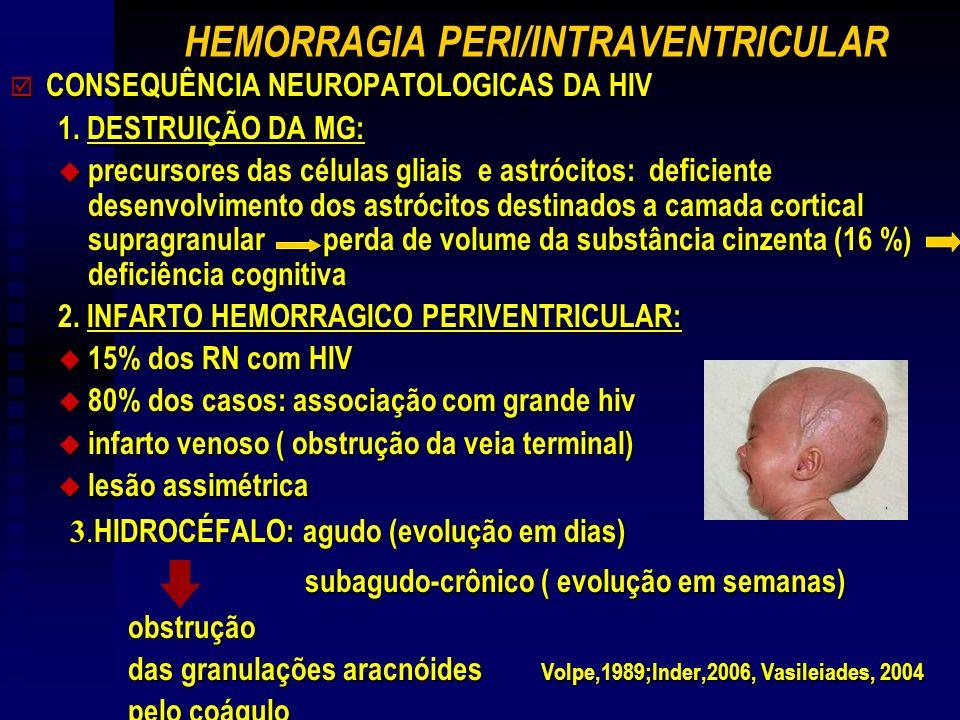 HEMORRAGIA PERI/INTRAVENTRICULAR þ CONSEQUÊNCIA NEUROPATOLOGICAS DA HIV 1.