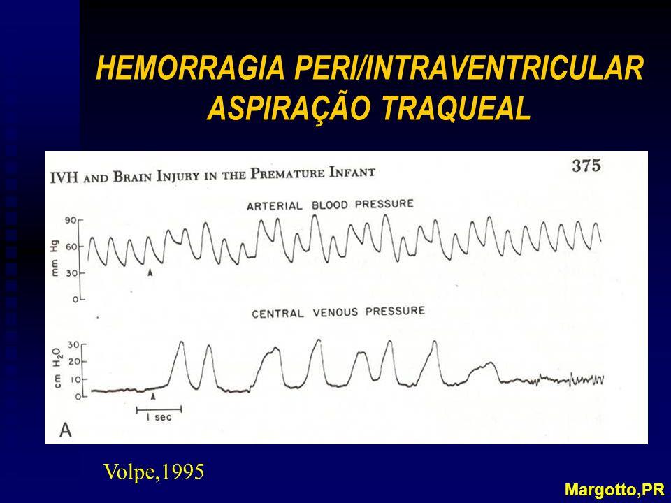 HEMORRAGIA PERI/INTRAVENTRICULAR ASPIRAÇÃO TRAQUEAL Margotto,PR Volpe,1995