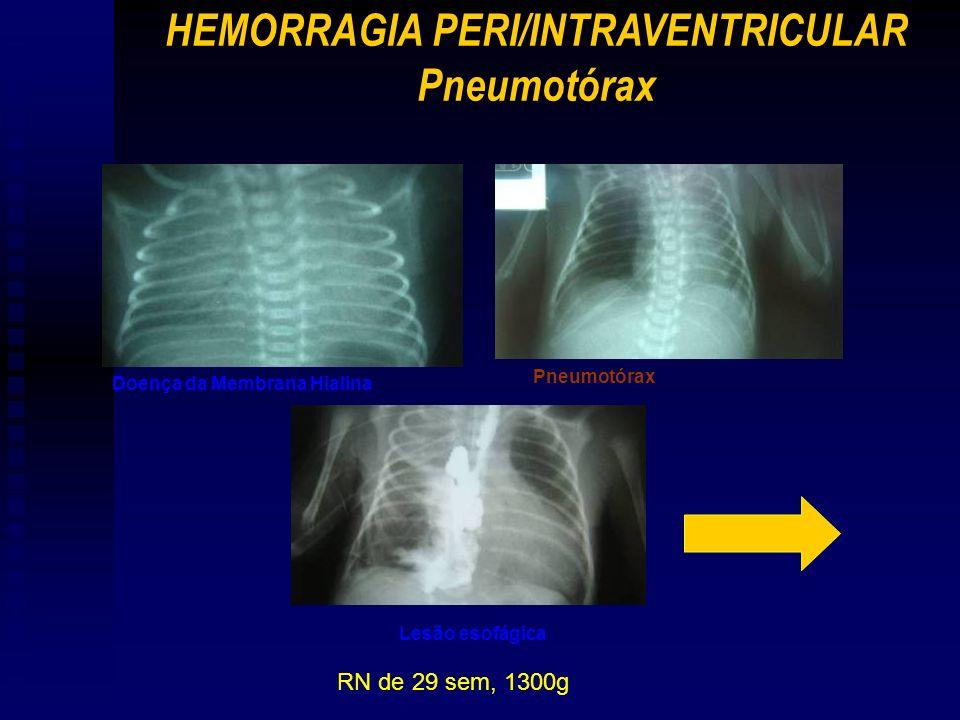 RN de 29 sem, 1300g Doença da Membrana Hialina Pneumotórax Lesão esofágica HEMORRAGIA PERI/INTRAVENTRICULAR Pneumotórax