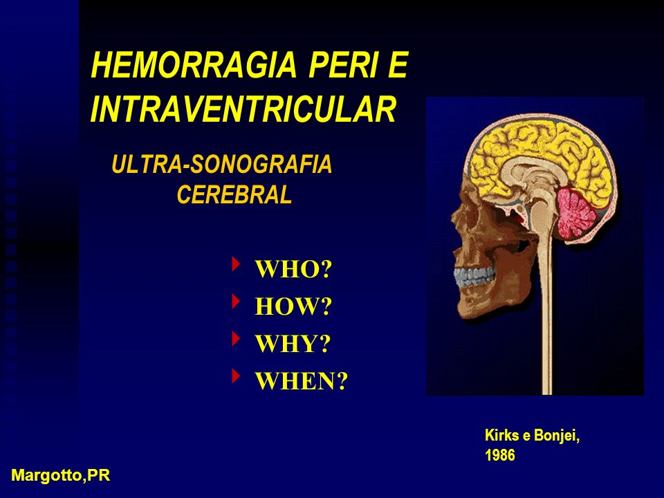 HEMORRAGIA PERI E INTRAVENTRICULAR ULTRA-SONOGRAFIA CEREBRAL WHO? HOW? WHY? WHEN? Margotto,PR Kirks e Bonjei, 1986