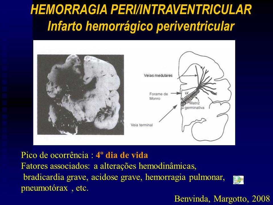Pico de ocorrência : 4º dia de vida Fatores associados: a alterações hemodinâmicas, bradicardia grave, acidose grave, hemorragia pulmonar, pneumotórax, etc.