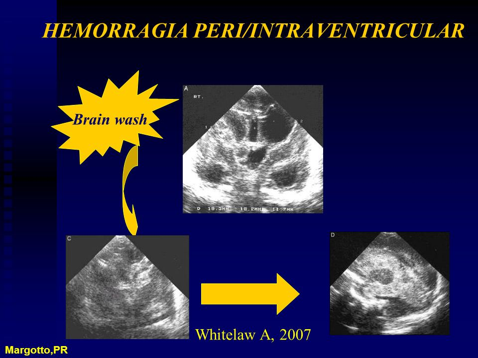 HEMORRAGIA PERI/INTRAVENTRICULAR Brain wash Whitelaw A, 2007 Margotto,PR