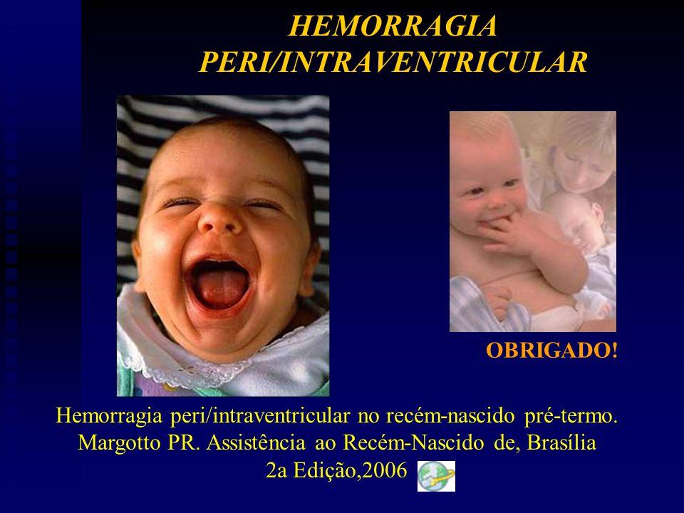 OBRIGADO.Hemorragia peri/intraventricular no recém-nascido pré-termo.