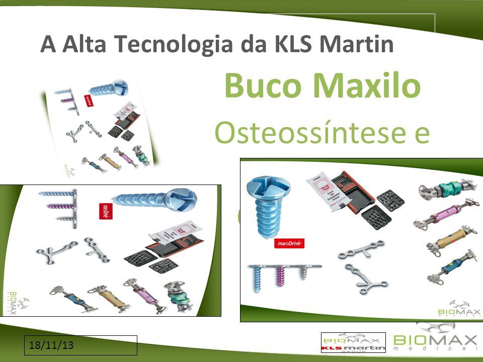 18/11/13 A Alta Tecnologia da KLS Martin Buco Maxilo Osteossíntese e Distração Osteogênica