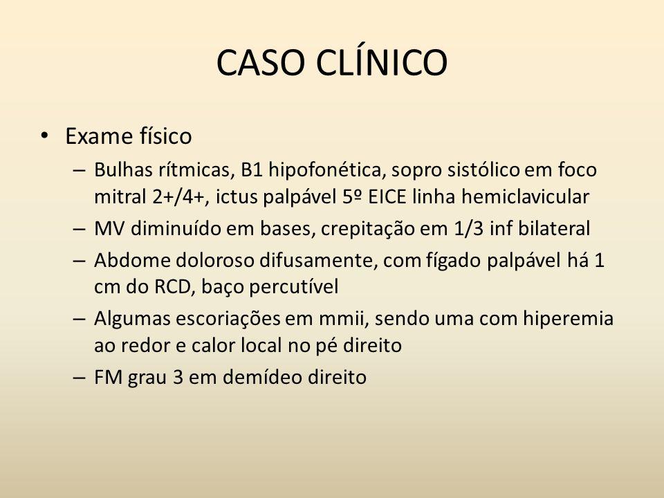 CASO CLÍNICO Exame físico – Bulhas rítmicas, B1 hipofonética, sopro sistólico em foco mitral 2+/4+, ictus palpável 5º EICE linha hemiclavicular – MV d