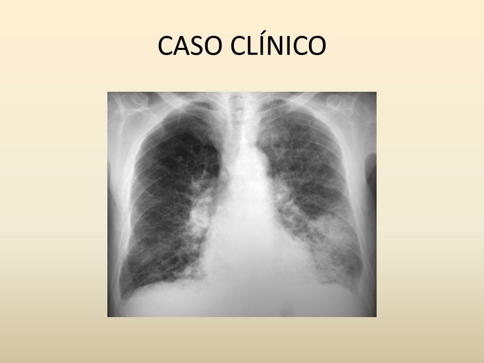 REFERÊNCIAS PROCLIM programa de atualização em Clínica Medica- Sociedade brasileira de Clínica Médica Barbosa MM.EI perfil clínico em evolução Arquivo Bras Cardiol.