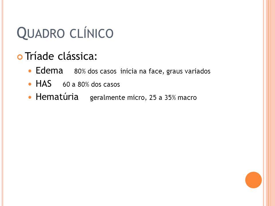 Q UADRO CLÍNICO Tríade clássica: Edema 80% dos casos inicia na face, graus variados HAS 60 a 80% dos casos Hematúria geralmente micro, 25 a 35% macro
