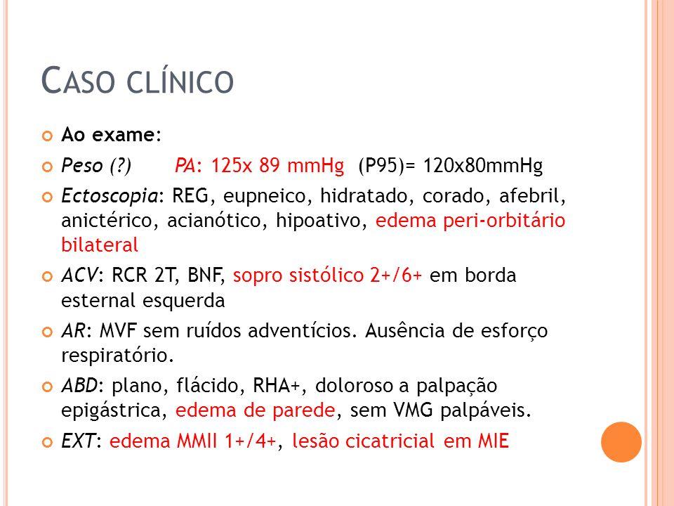 C ASO CLÍNICO Ao exame: Peso (?) PA: 125x 89 mmHg (P95)= 120x80mmHg Ectoscopia: REG, eupneico, hidratado, corado, afebril, anictérico, acianótico, hipoativo, edema peri-orbitário bilateral ACV: RCR 2T, BNF, sopro sistólico 2+/6+ em borda esternal esquerda AR: MVF sem ruídos adventícios.