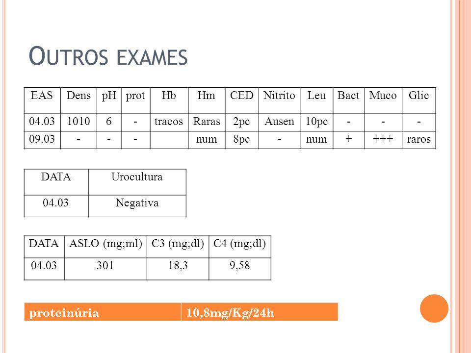 EASDenspHprotHbHmCEDNitritoLeuBactMucoGlic 04.0310106-tracosRaras2pcAusen10pc--- 09.03---num8pc-num++++raros DATAUrocultura 04.03Negativa DATAASLO (mg;ml)C3 (mg;dl)C4 (mg;dl) 04.0330118,39,58 O UTROS EXAMES proteinúria10,8mg/Kg/24h