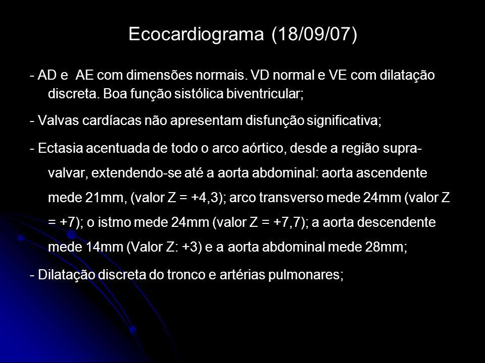 Ecocardiograma (18/09/07) - AD e AE com dimensões normais.